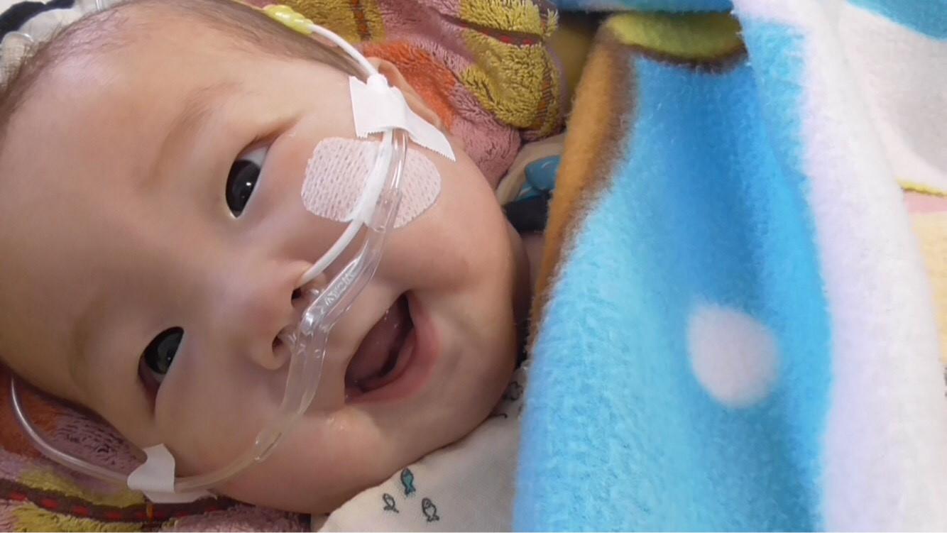 たけるくん(1歳)の海外での心臓移植を。笑顔あふれる未来のために!