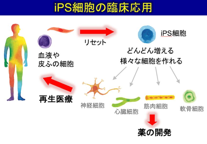 iPS細胞の臨床応用