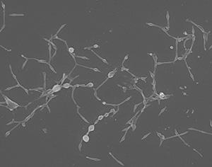 多様な形状を持ち、自己増殖可能な最小の微生物「肺炎マイコプラズマ」