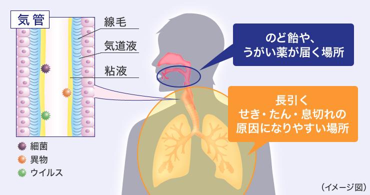 長引くせき・たん・息切れの原因になりやすい場所と、のど飴やうがい薬が届く場所のイメージ図