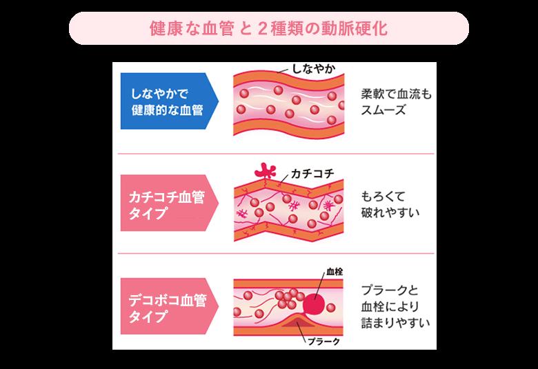 健康な血管と2種類の動脈硬化